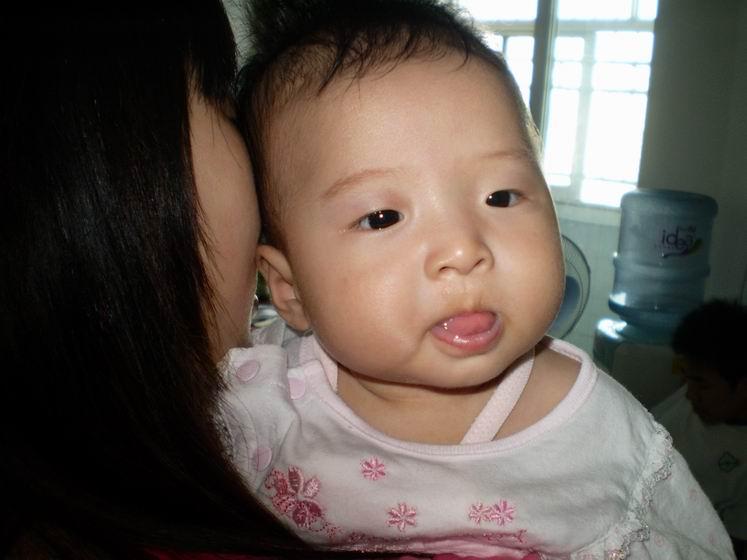 儿童舌头溃疡图片
